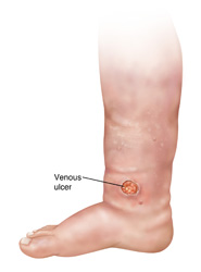 Illustration of a venous ulcer